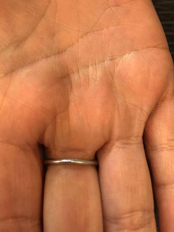 指から抜けなくなった指輪